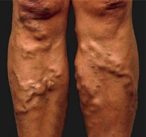 varicose_vein ayurvedic treatment