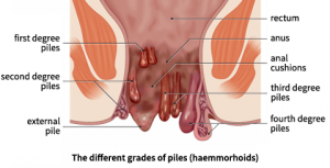 home-remedies-for-haemorrhoid-piles